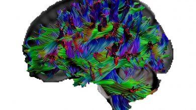 Η γενική κουλτούρα δικτυώνει καλύτερα τον εγκέφαλο